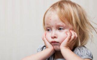 ЖКВ прививка: расшифровка, схема вакцинации, осложнения