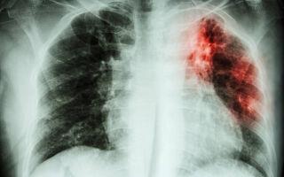 Прививка от туберкулёза